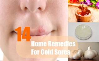 home remedies for a cold sore 14 home remedies for cold sores treatments