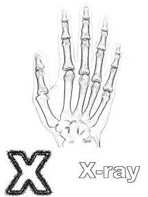 Is For X Ray  Coloring Page sketch template