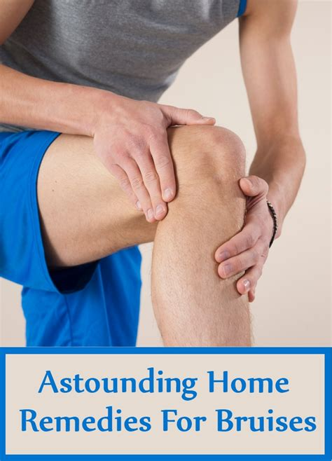 7 astounding home remedies for bruises home