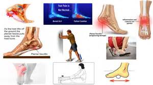 Planters Fasciitis Exercises by Correct Plantar Fasciitis Quickly Medically Proven The
