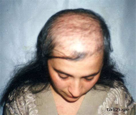 before and after photos alopecia antrogenetic women androgenic alopecia and hair transplant latest news in