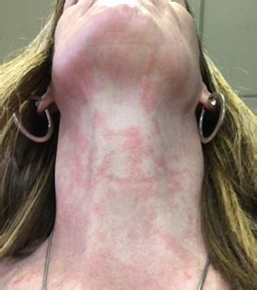 itchy rash on face and neck pictures of rashes and skin rash photos healthy skin care