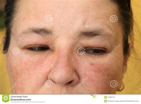 alimenti che provocano allergie allergie of bindvliesontsteking up stock foto
