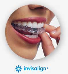 clearly comfortable smiles invisalign in houston tx clear braces for teens adults