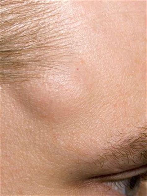 lump s skin that image gallery skin lumps