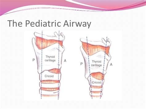 anatomy of a child s lung pediatric pulmonologists image gallery pediatric airway