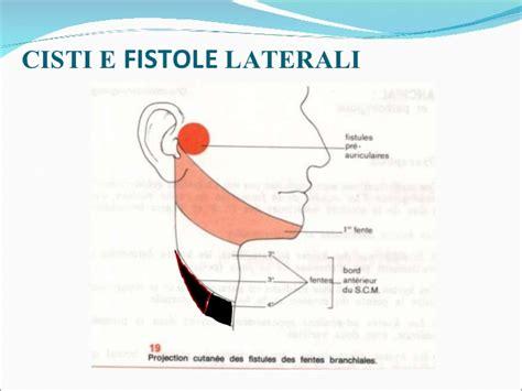 cisti alla testa cisti congenite della testa e collo