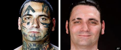 tattoo removal face former white supremacist undergoes radical tattoo removal