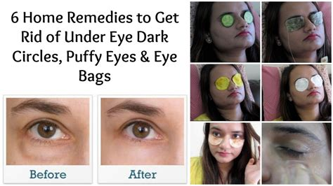 Reasons For Eye Circles And Puffiness by Treatment For Eye Bags And Circles Best Model Bag 2016