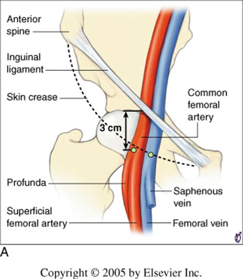 diagram of femoral artery book text