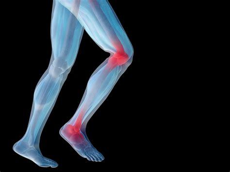 Knee Ankle sciatica back disc problems neck shoulder