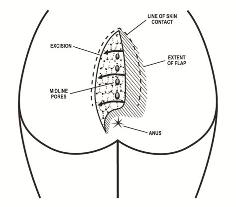 pilonidal cyst diagram pin gluteal crease image search results on pinterest