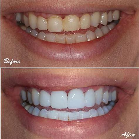 upper incisors  failing veneers restored  emax