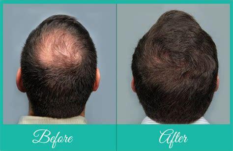 hair crown area fue crown hair transplant in pune crown area hair loss
