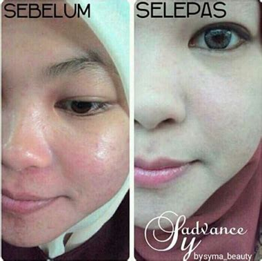 Cleansing Gel Sabun Wajah Remaja Nutrisi Vitamin syadvance kulit cerah mempesona kekal remaja jelitawankini