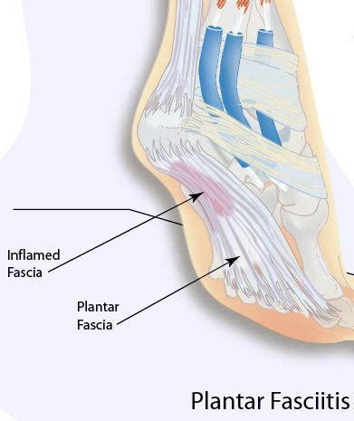 Planter Facitius by Plantar Fasciitis Causes Symptoms And Treatment