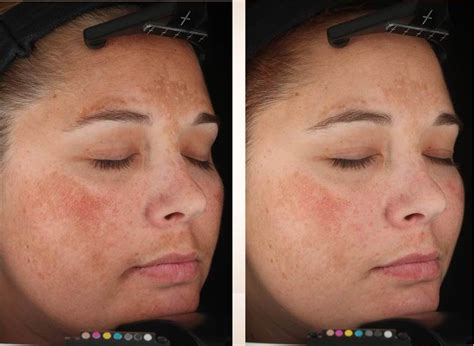 Melasma 5 In 1 get rid of brown spots for now 20 for june july by buford