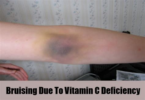 Due To Vitamin A Deficiency 5 various symptoms of vitamin c deficiency search home remedy