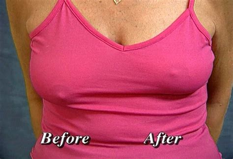 Breast Up the original instant breast lift