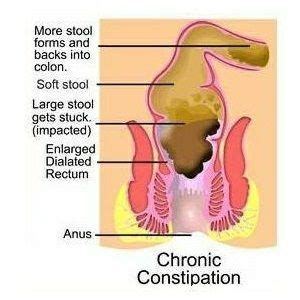 Detox Home Remedies For Constipation by Laxatives Home Remedies For Constipation Stomach