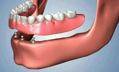 protesi mobile su impianti studio mercuri maurizio il tuo dentista di fiducia a roma