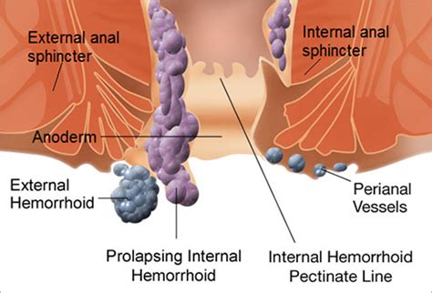 what causes piles how long should you bleed after giving slideshow what are hemorrhoids