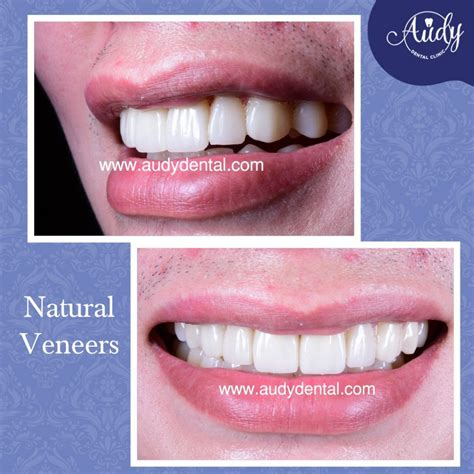 Veneer Pemutih Gigi promo veneer gigi audy dental 2 audy dental