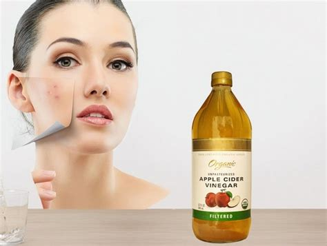 apple vinegar for face how to deal with pimples the natural way epicare
