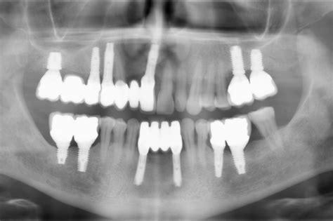 piombatura denti gallery smilife