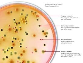 Stool Pathogens new medium detects enteric pathogens by simple color change labcompare