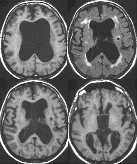teaching neuroimage prepontine suprasellar arachnoid cyst