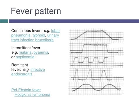 fever pattern types pyrexia of unknown origin puo