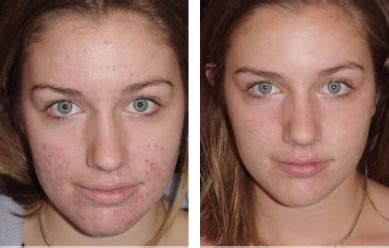 Detox After Accutane by Skin Care Reviews