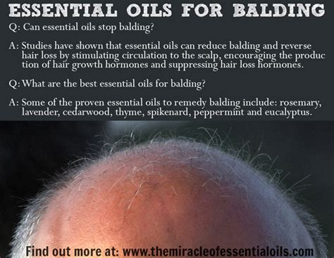 essential oil to prevent hair loss 7 essential oils for balding how to use the miracle of