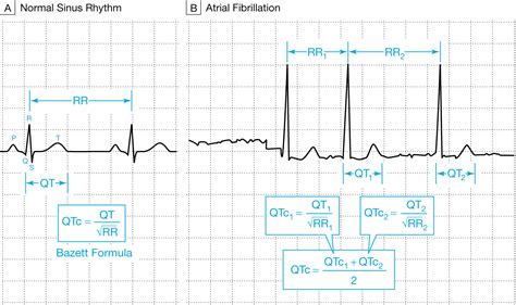 calculator qtc what clinicians should know about the qt interval jama