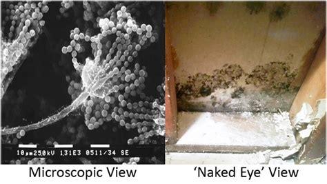 symptoms  black mold exposure