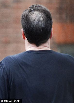 difference between a bald spot and a part chancellor george osborne s bald spot nearly vanishes over