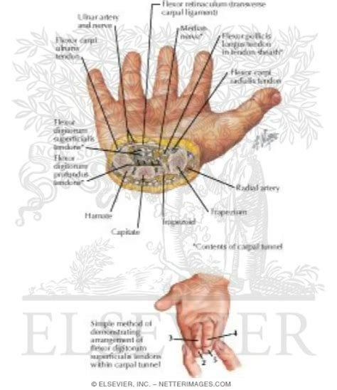 cross section of wrist illustrations in surgical anatomy review trelease 1e