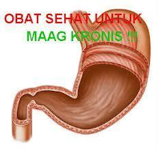 Obat Tradisional Maag Gastritis obat tradisional maag kronis