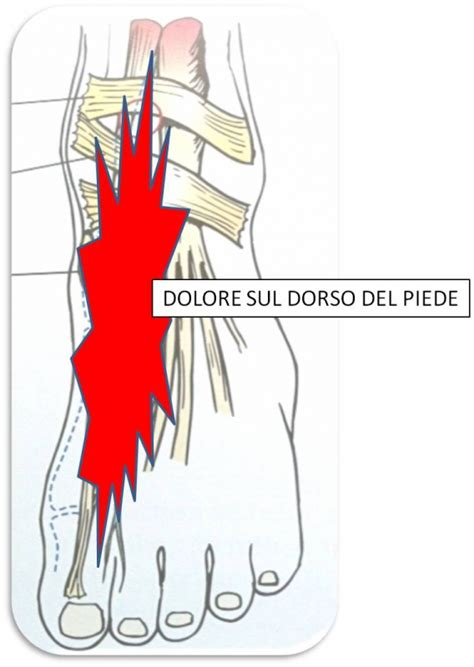 dolore lato interno ginocchio amazing dolore piede esterno dz17 pineglen