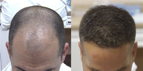 black man 3000 grafts 2500 fue hair grafts results carolina hair surgery
