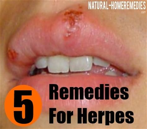 herbal herpes cure is prunella vulgaris how to stop