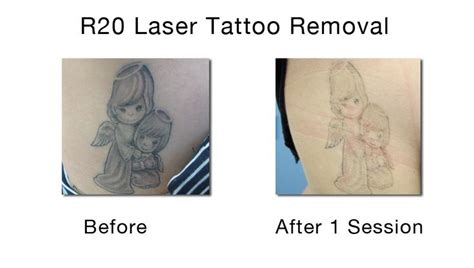 tattoo removal new york city 49 best images about laser removal on