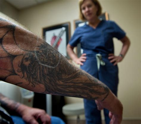 tattoo laser removal chicago remorse what you need to about erasing your