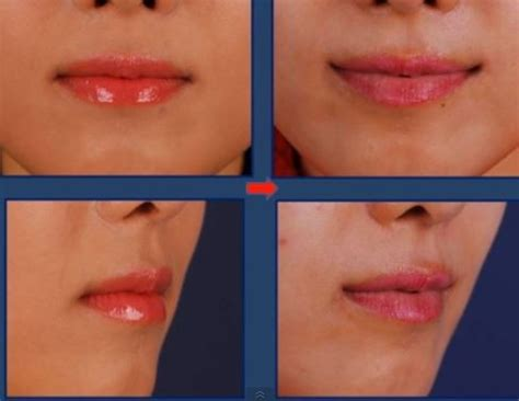 perms after surgery perma smile hits korea disturbing images show lips curled
