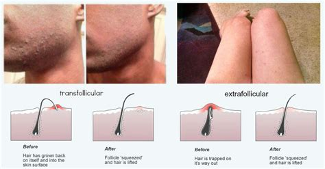 where can a male go to get pubic hair trimmed 10 ways to get rid of your razor bumps and skin