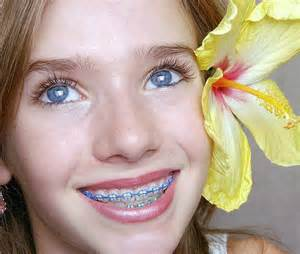 best color for braces the gallery for gt purple braces
