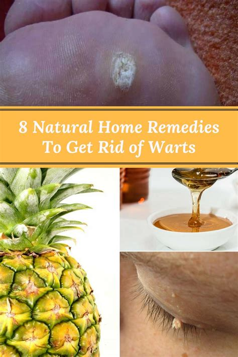 8 home remedies to get rid of warts home and