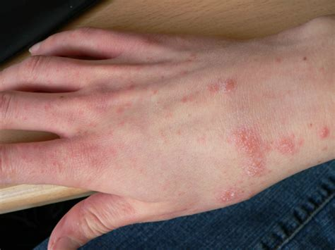 Scabies Treatment by Scabies Treatment You Can Try