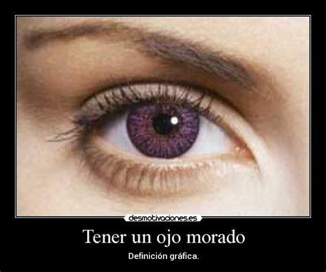 imagenes ojos morados tener un ojo morado desmotivaciones